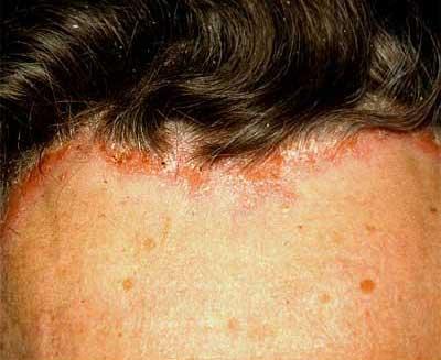 Ekcéma, seborrhoeás dermatitis és a hajhullás - DR. IMMUN Hajhullás ellen